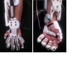 Gelähmte Hand wird durch Exoskelett wieder funktionsfähi