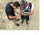 Beinprothese mit Gefühl erleichtert das Gehen und lindert Phantomschmerzen