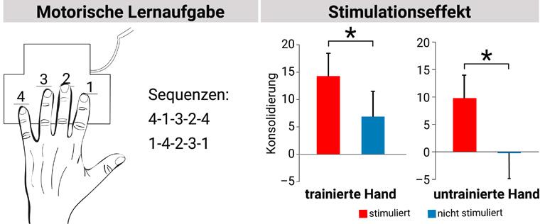 Hirnstimulation hilft beim motorischen Lernen