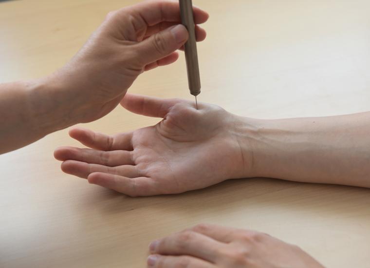 Wenn die rechte Hand nach Verletzung der linken überempfindlich ist